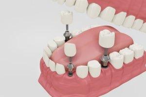 expertos en implantes dentales