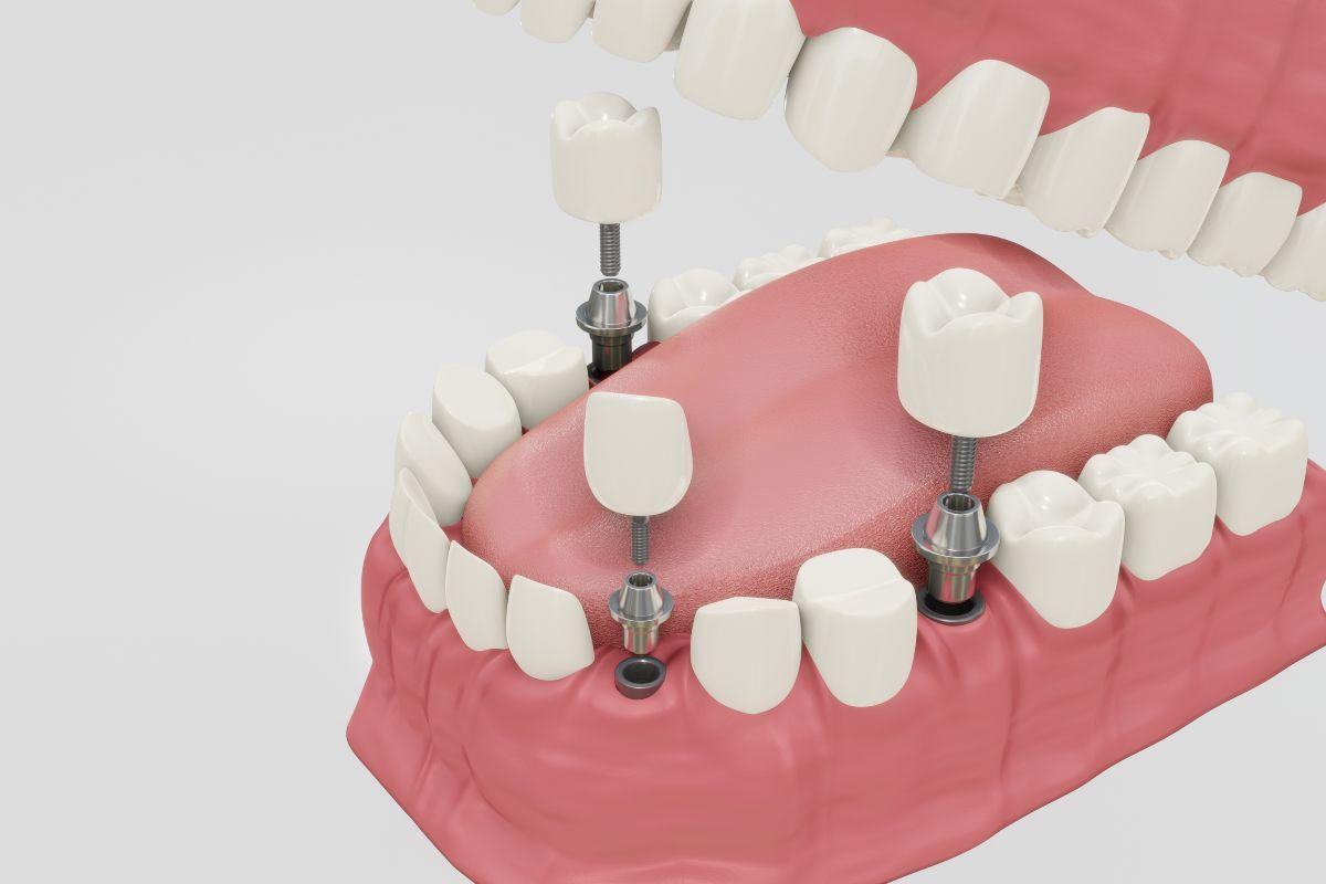 Clínica dental Sevilla, expertos en implantes dentales