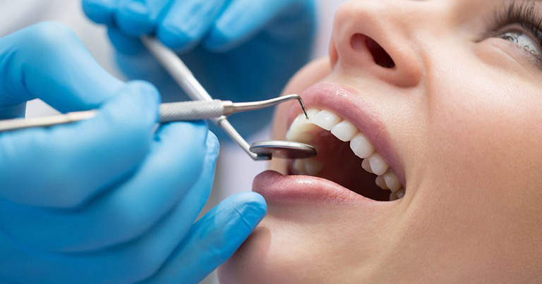 Cavitación dental
