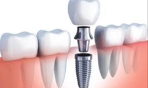 Implantes dentales estratégicos
