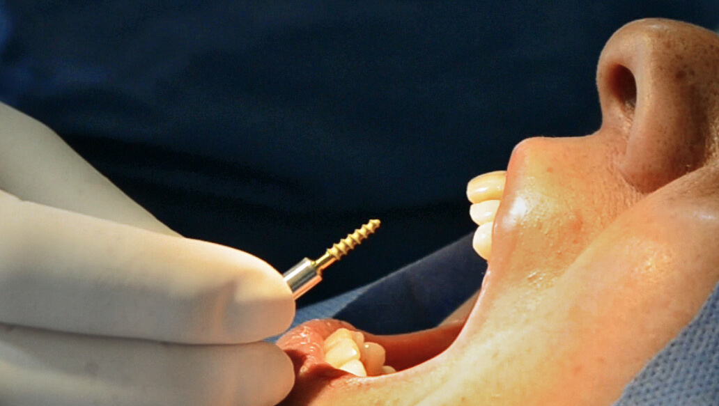 Beneficios de la implantología estratégica