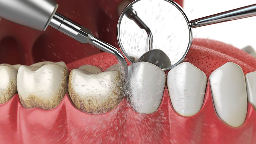 Qué es la profilasis dental y cómo lo hacemos