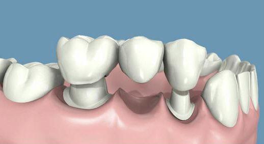 Las tres mejores maneras de sustituir piezas dentales