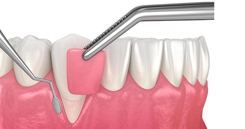 Técnicas periodontales sin cirugia