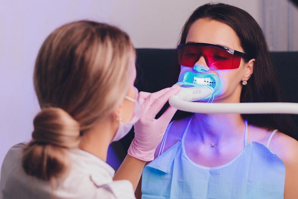 Blanqueamiento y carillas dentales.