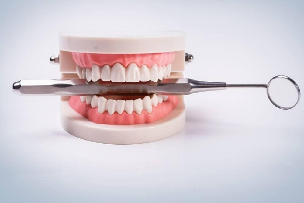 Acerca de los implantes dentales