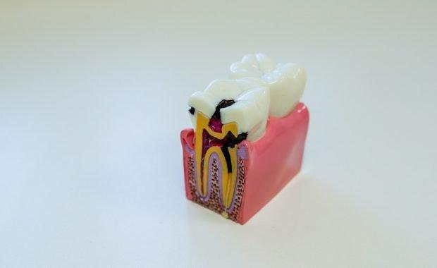 Guía para prevenir la caries dental