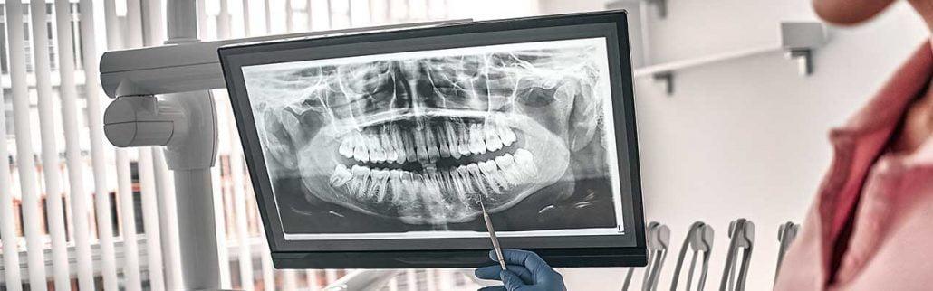 Cirugía dental por ordenador