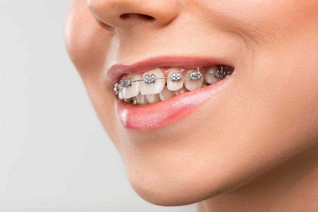 Fases del tratamiento de ortodoncia