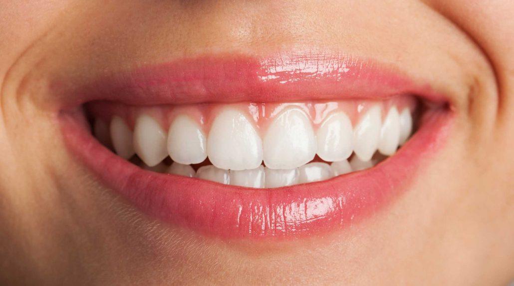 Pasos y tratamientos para conseguir una sonrisa perfecta